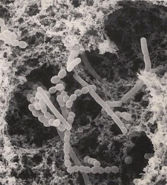 Qui il Lactobacillus delbrueckii osservato al microscopio (nella foto in basso lo Streptococcus thermophilus). Si tratta di due dei principali costituenti della microflora presente nelle tine di legno utilizzate per caseificare il Ragusano Dop