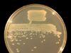 Colonie di Pseudomonas fluorescens in agar agar visualizzate sotto luce bianca - foto Ninjatacoshell® (Creative Commons License)